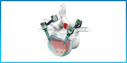 Spine Spancer Transforaminal - Spine